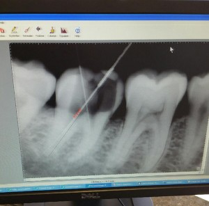 costa-mesa-root-canal