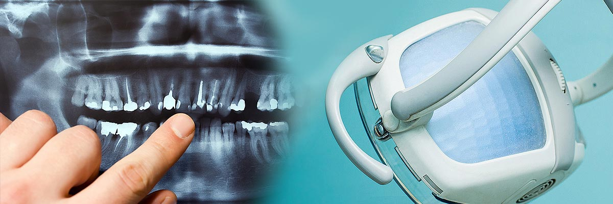 Questions to Ask at Your Free Dental Implants Consultation