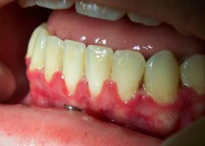 receding-gums-300x214